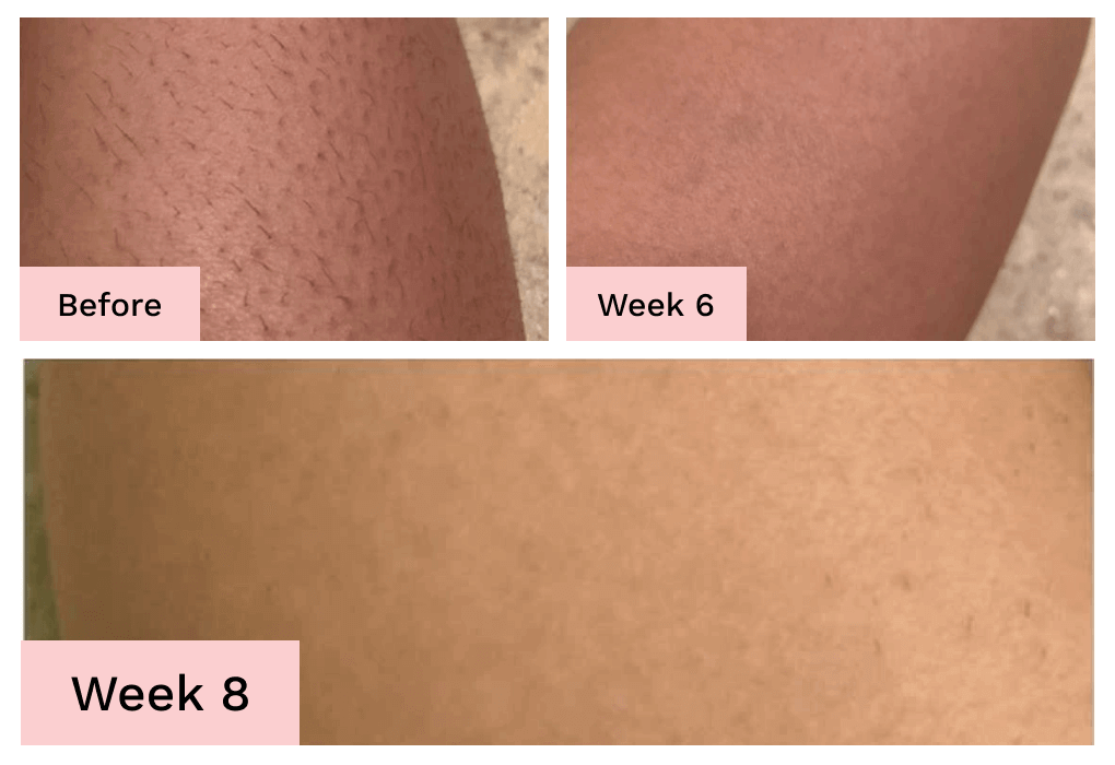 laser hair removal on arms
