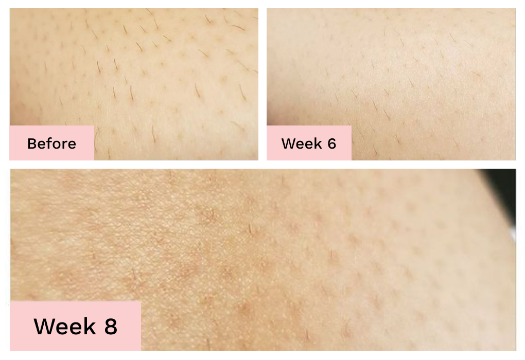 Brazilian Laser Hair Removal At Home Cost Tips And Benefits