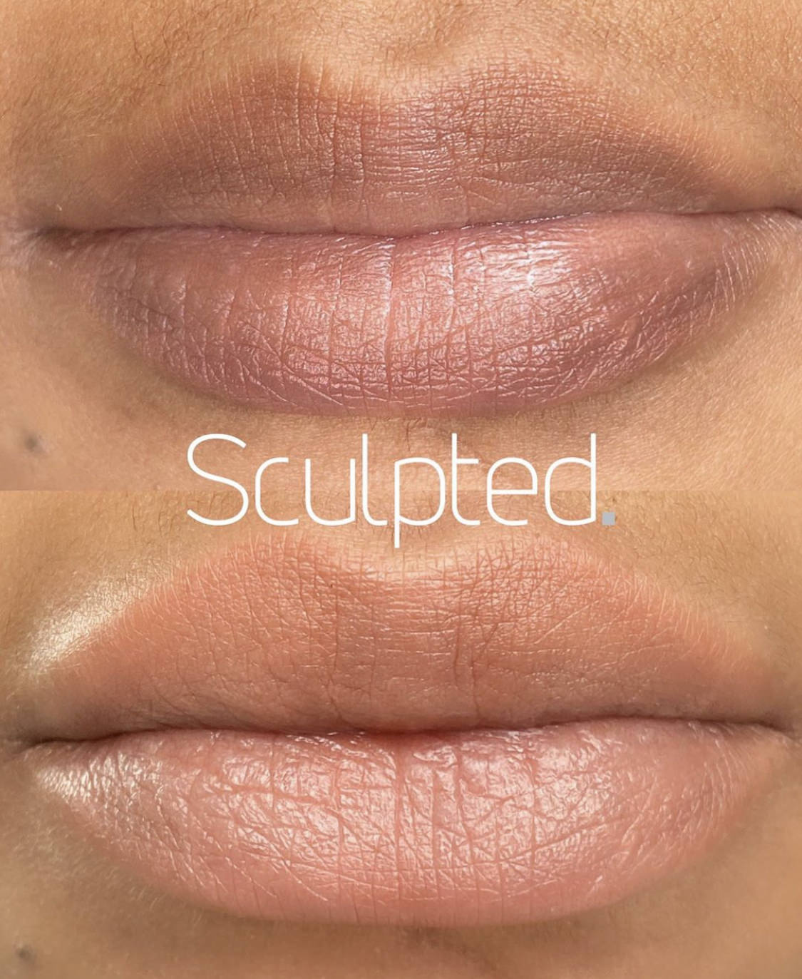 The Ultimate Lips Training Package (IN-PERSON)