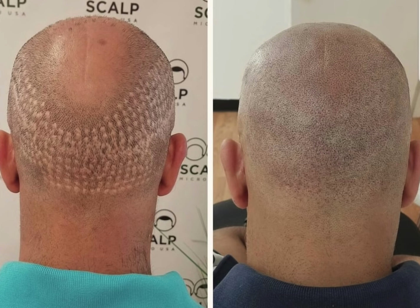 scalp micropigmentation hair transplant scar training