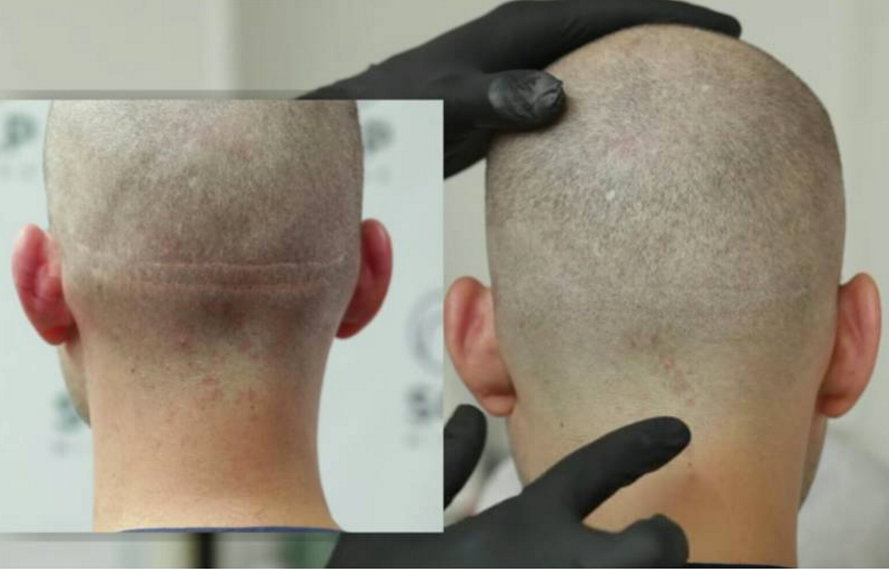 scalp micropigmentation scar training online