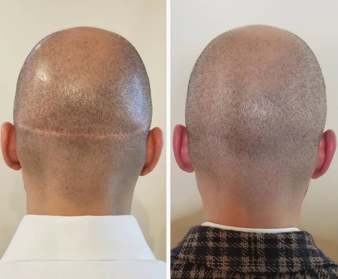 scalp micropigmentation scar training