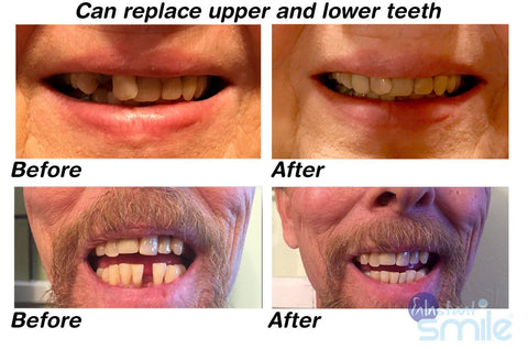 Instant Smile Multishade Patented Temporary Tooth Repair Kit A
