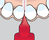 how_to_use_idb_1_front_teeth_1-2000px