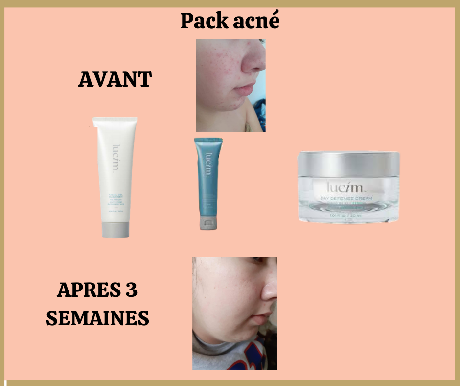 Pack acné