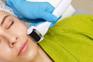 Acne Scars: What's the Best Treatment?