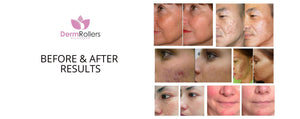 Skin-disorders-condition-treatment-before-and-after
