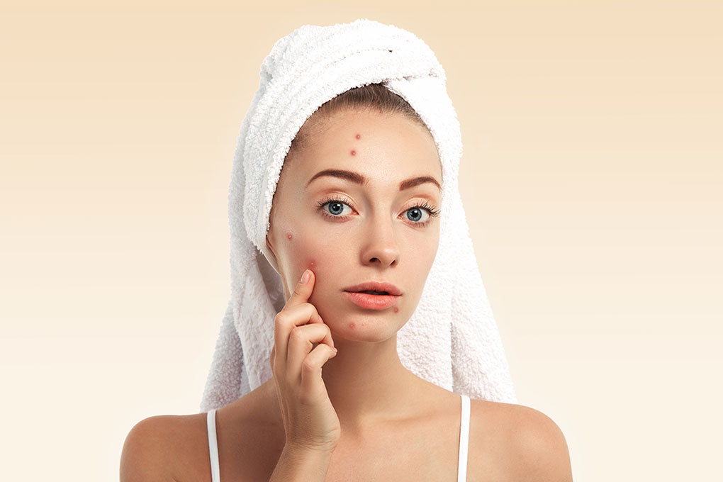 Should I use CBD to treat acne?