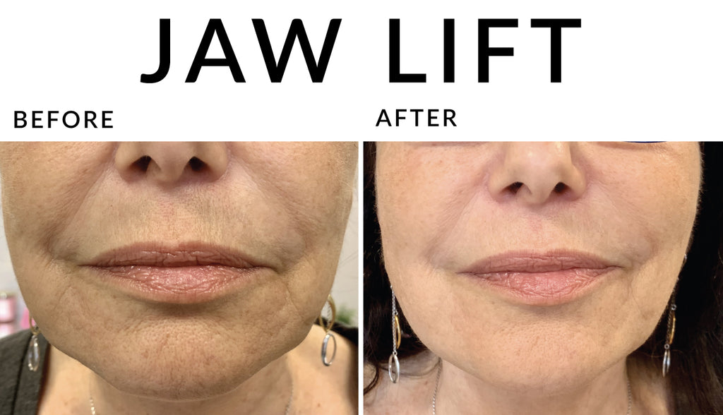 Jawline Lift with Hyaluron Pen - NanoGlow Academy