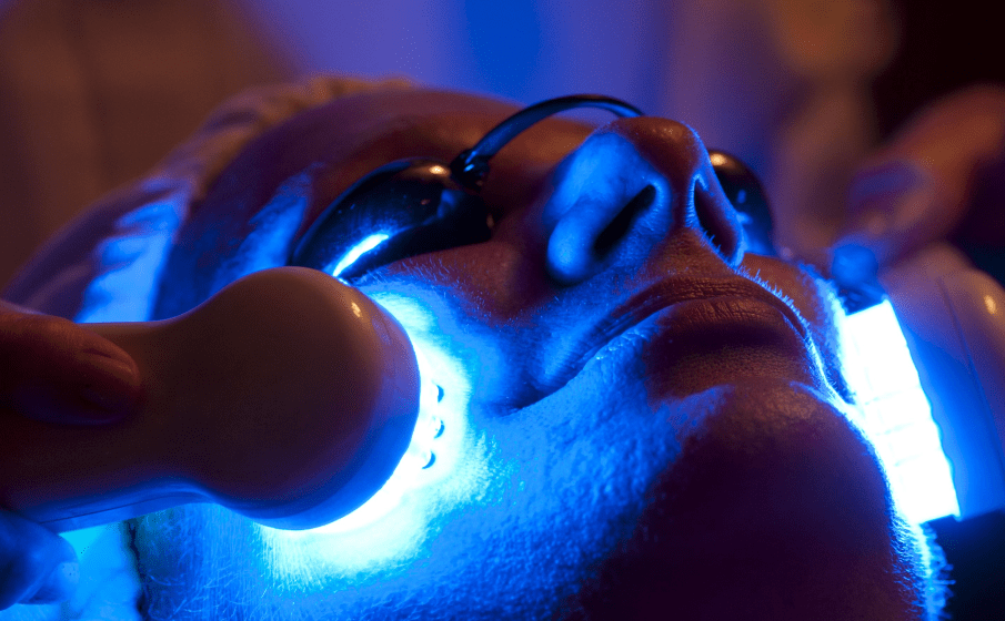 Blue Light Therapy for Acne Spot