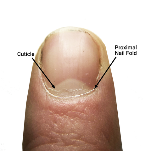 cuticle