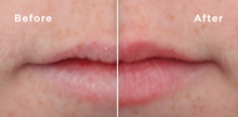 Load image into Gallery viewer, HA5® Smooth and Plump Lip System