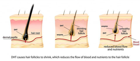 How DHT Leads To Hair Loss