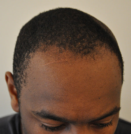 Causes Of Male Pattern Baldness