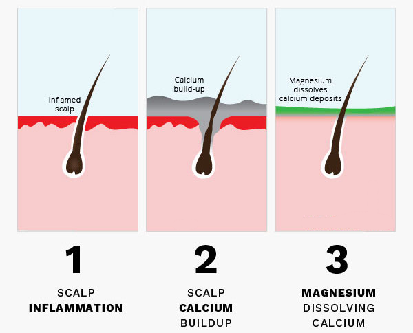 An illustration of how calcification affects hair loss