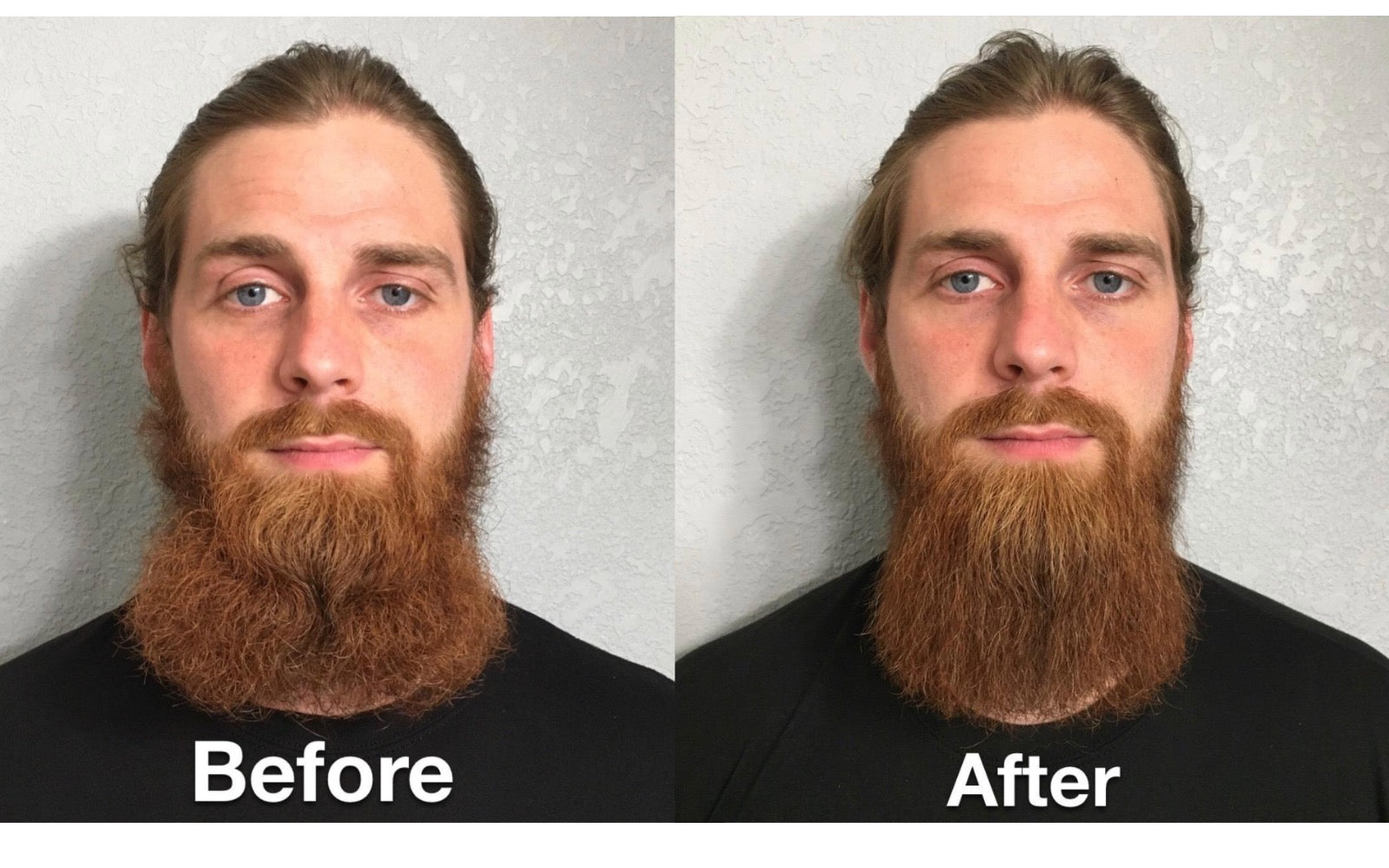 Newmen™ Premium Beard Kit