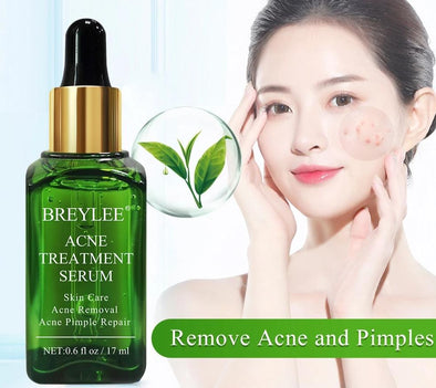 Whitening Repair Pimple Skin Care Cream
