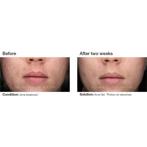 PCA Skin Acne Gel Before & After