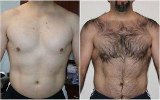 Laser chest area 10 session