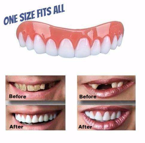 Snap On Smile (BUY 2 GET 10%, BUY 3 GET 15%, BUY 4 GET 20%, BUY 5 GET 25%)
