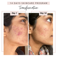 before after skincare girl face