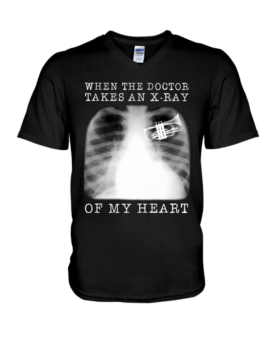 When The Doctor Takes An X-Ray Of My Heart For Trumpet Lovers Guys V-Neck