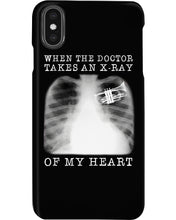 Load image into Gallery viewer, When The Doctor Takes An X-Ray Of My Heart For Trumpet Lovers Phone case