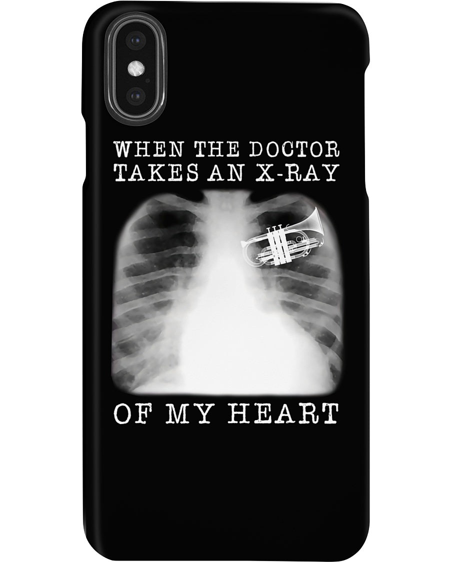 When The Doctor Takes An X-Ray Of My Heart For Trumpet Lovers Phone case