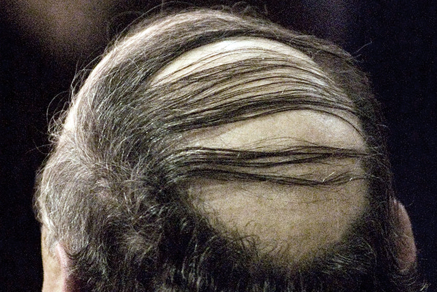 Thinning Hair Comb Over