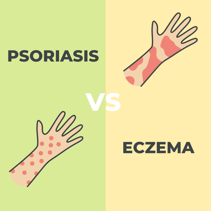 Psoriasis vs Eczema - What's the Difference Between Them