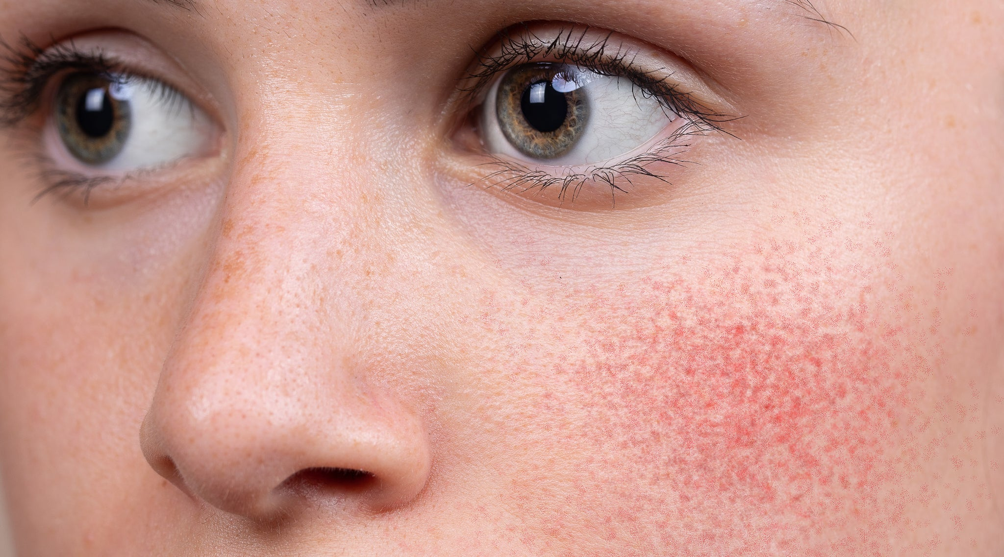Spotlight On | Rosacea