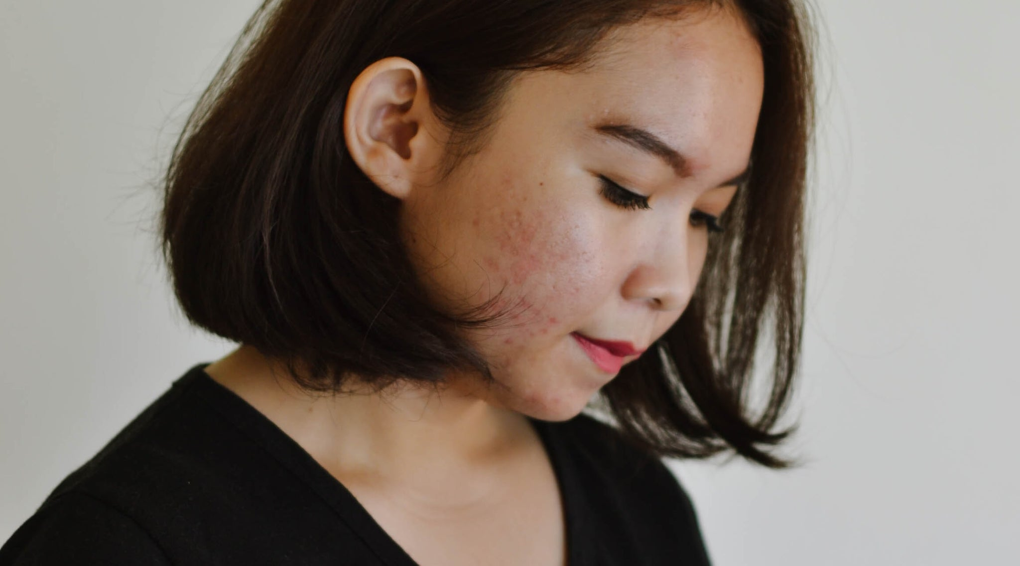 What causes Acne? | A word from our experts