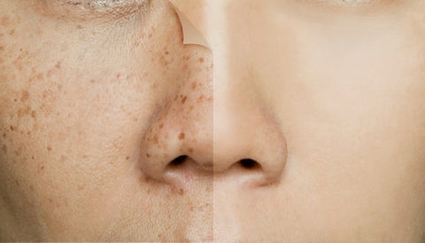 Enlightening Facts About Dark Spots and Hyperpigmentation