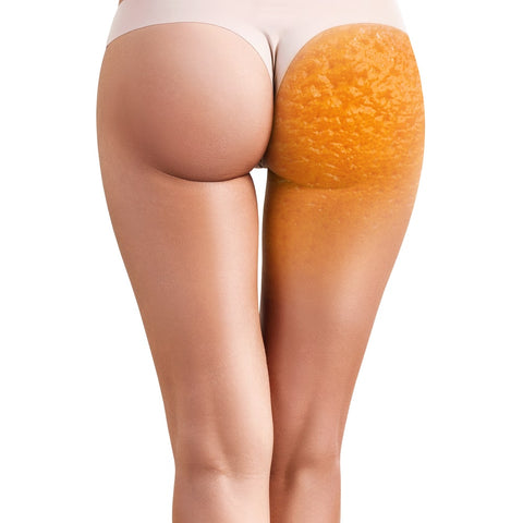 Causes, Treatments and Prevention of Cellulite