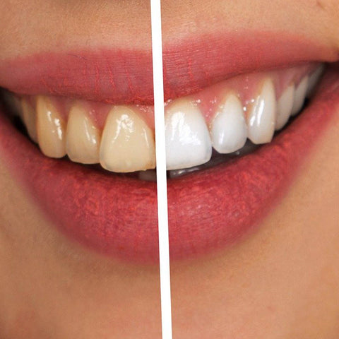 comment blanchir efficacement ses dents à la maison