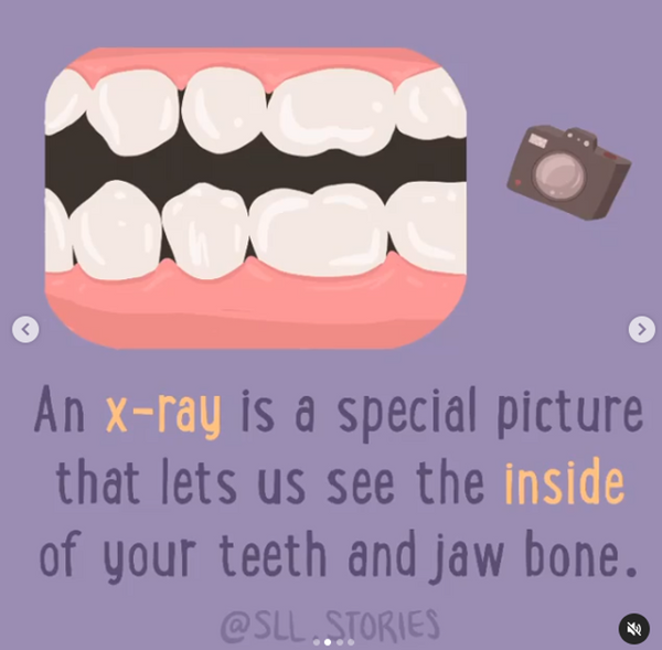 are dental x rays safe children oral health grin natural
