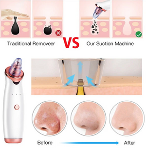 Black Head Remover™ - Beauty Products