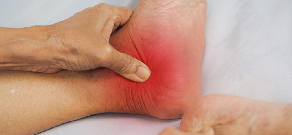How does Reflexology Soothe Arthritis Symptoms?