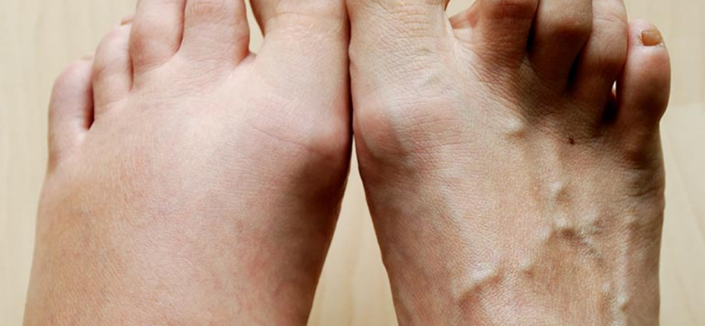 FLUID RETENTION, OEDEMA, SWOLLEN LEGS AND ANKLES