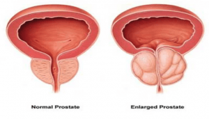 reflexology aids an enlarged prostate
