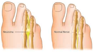 Revs Reflexology & Mortons Neuroma