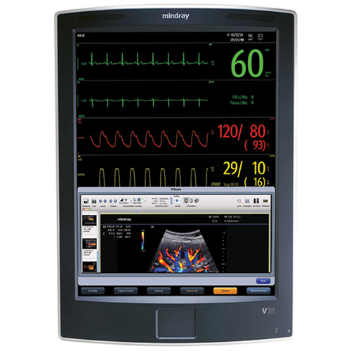 "Mindray V21 Patient Monitor - 21"" TouchScreen with Co2 (Refurbished)"