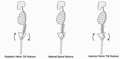 Why It's Important To Know Your Type Of Posture by Claudia Massa