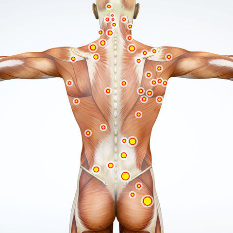 Trigger points - Osteopathy - MARTneck