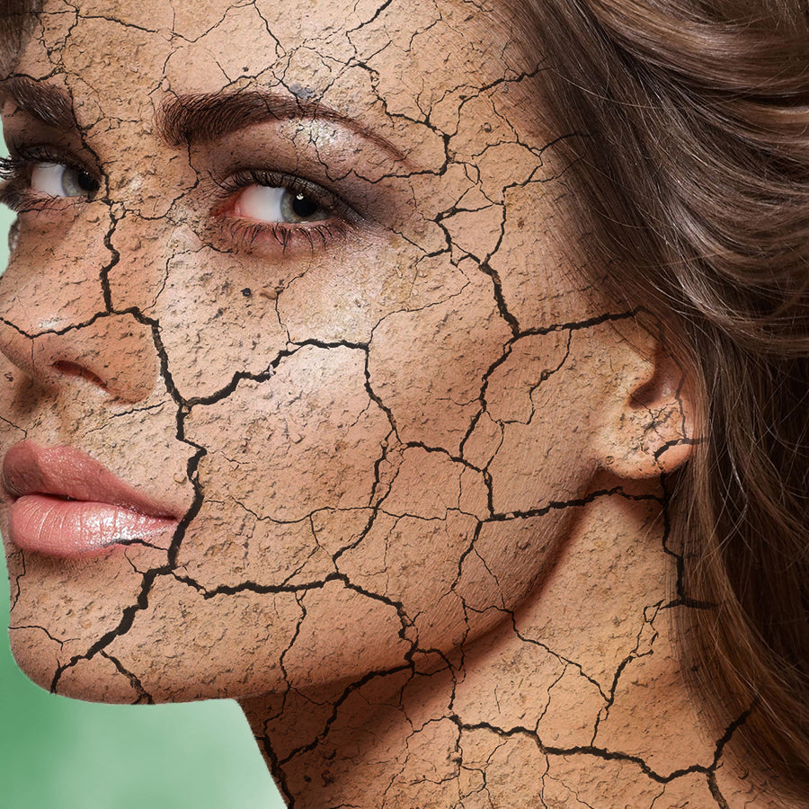 Why moisture is harming your skin