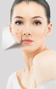 HOO Dermatology Acne Treatments