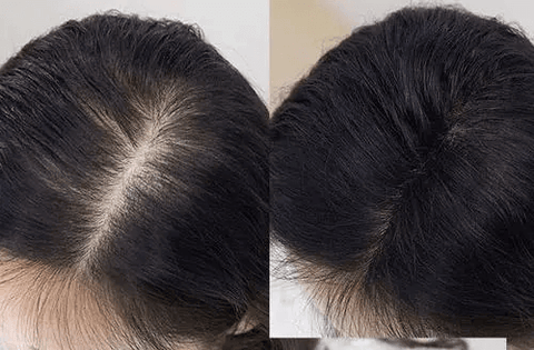 stop hair fall out