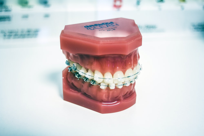 Gum Disease and Bad Oral Hygiene – Everything You Need to Know