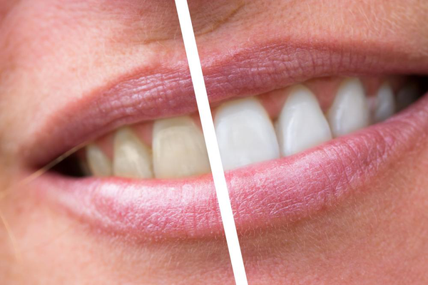 An image showing a difference between yellow and white teeth.