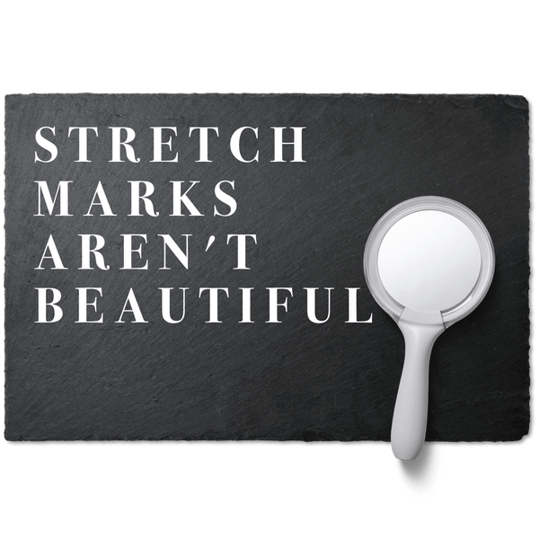 Stretch Marks Aren't Beautiful